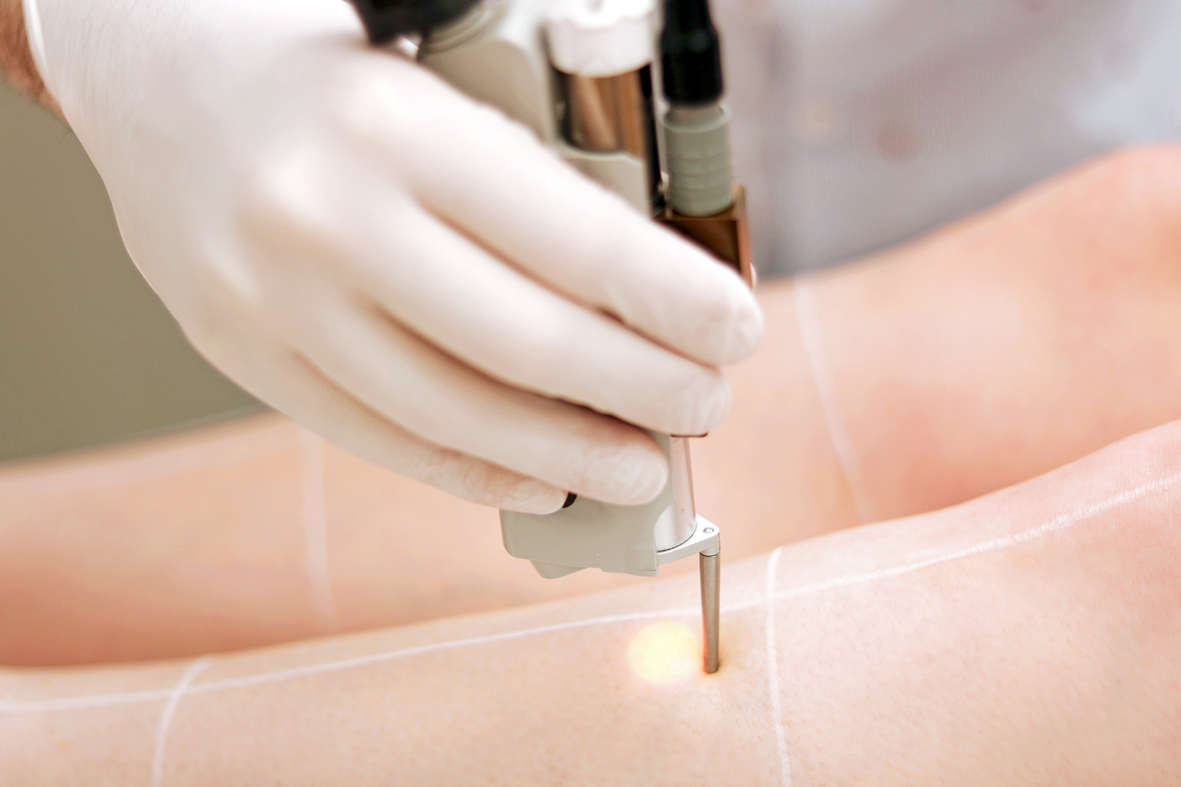 epilation-definitive-centre-laser-lyon